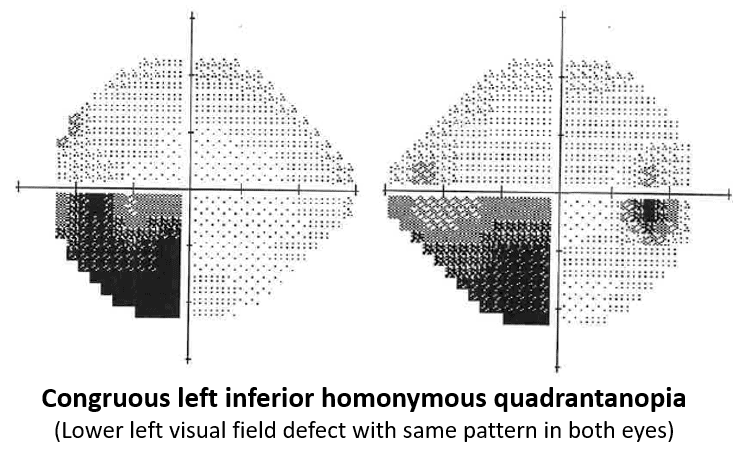 This is a visual field test of a person with a lower left visual field defect. The pattern is the same in both eyes.