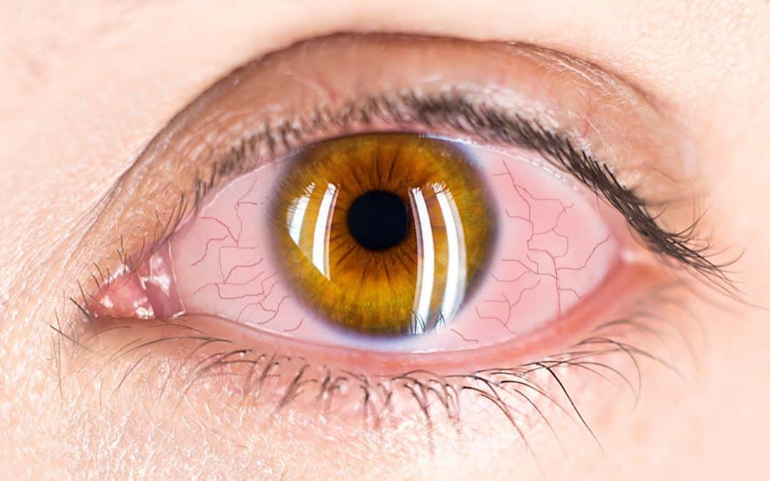 Uveitis: Ocular Inflammation