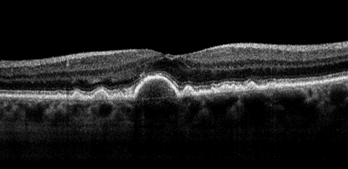 Black and white OCT of dry macular degeneration
