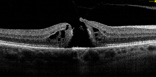 Black and white OCT scan of a full-thickness macular hole