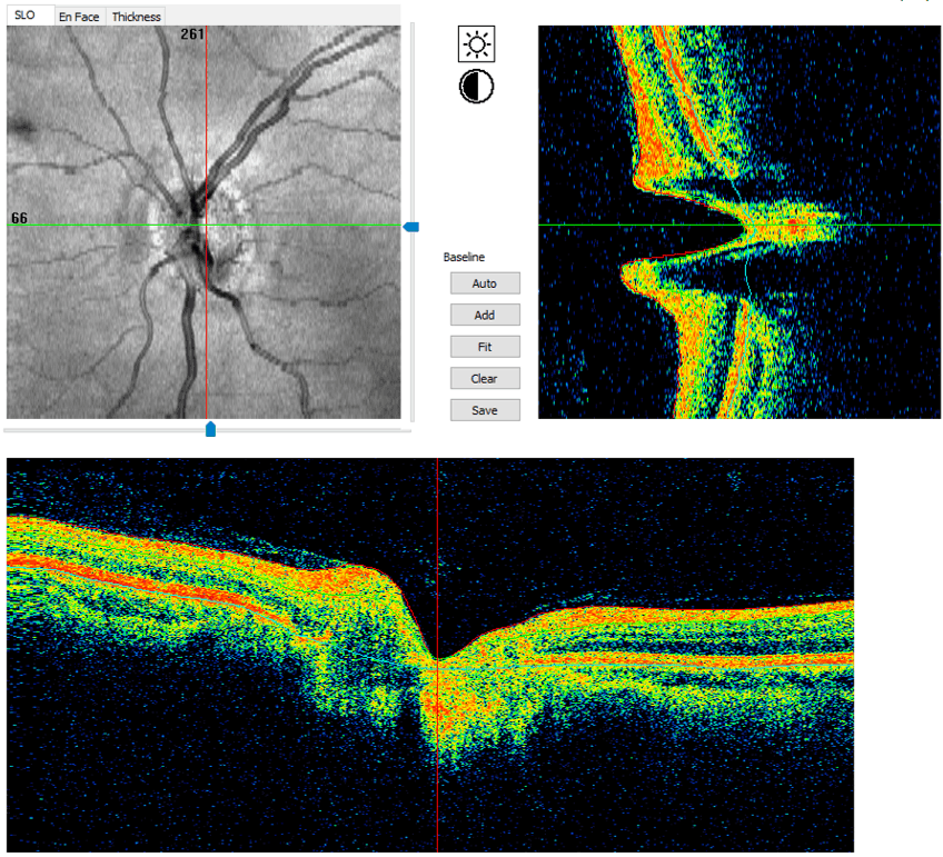 Colored and black and white version of optic nerve OCT scan of normal eye