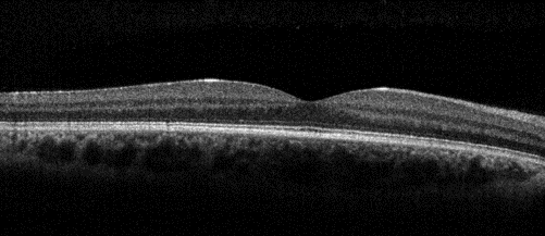 Black and white OCT iWellness scan of a normal macula
