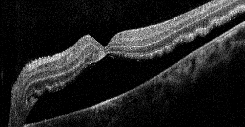 Black and white macular OCT of a patient with a retinal detachment